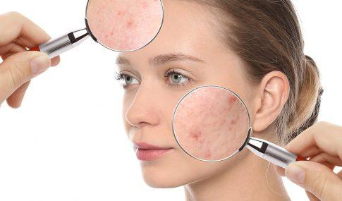 Skin Reveals Health Problems