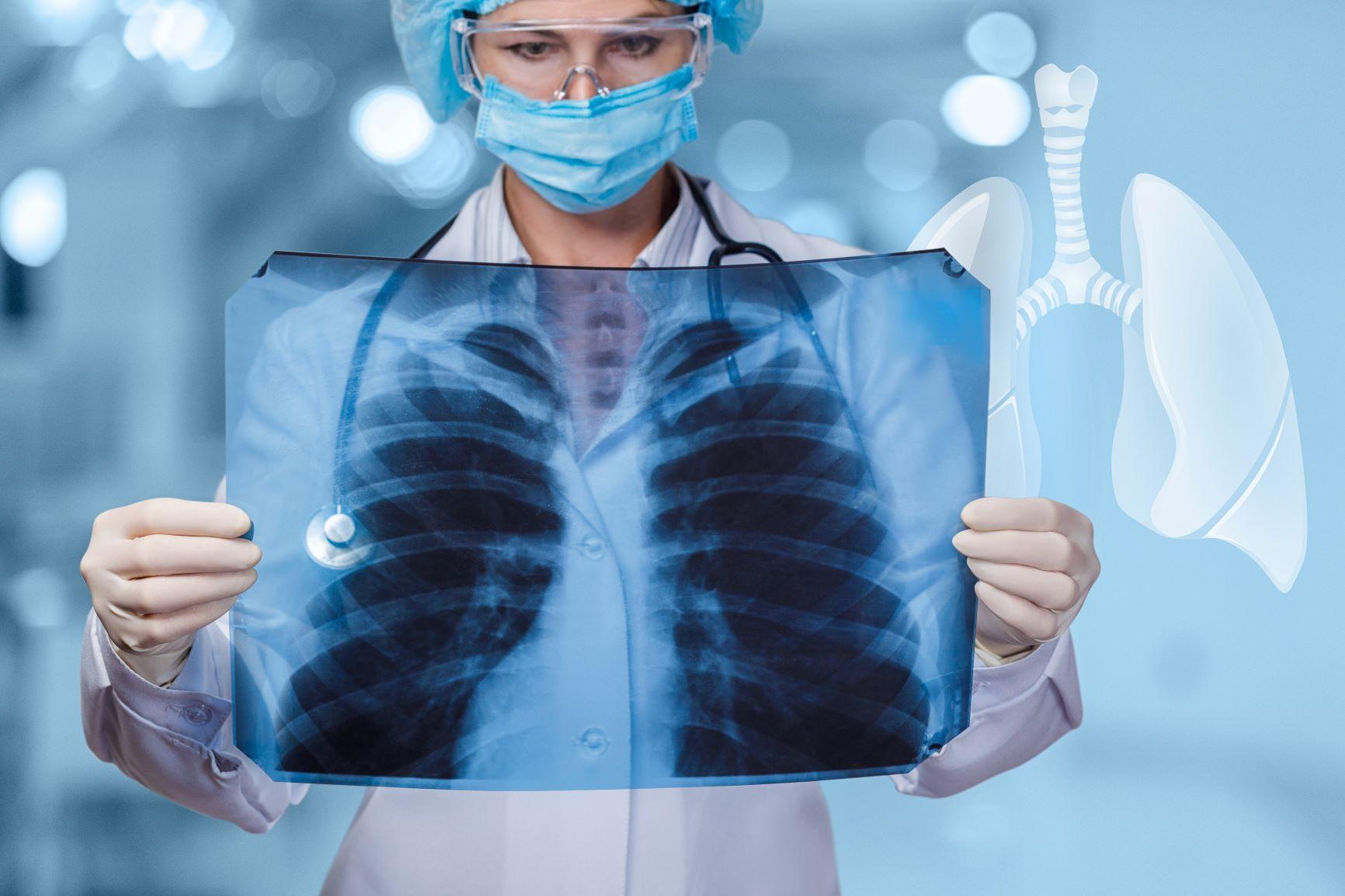 Lung damage, Covid-19