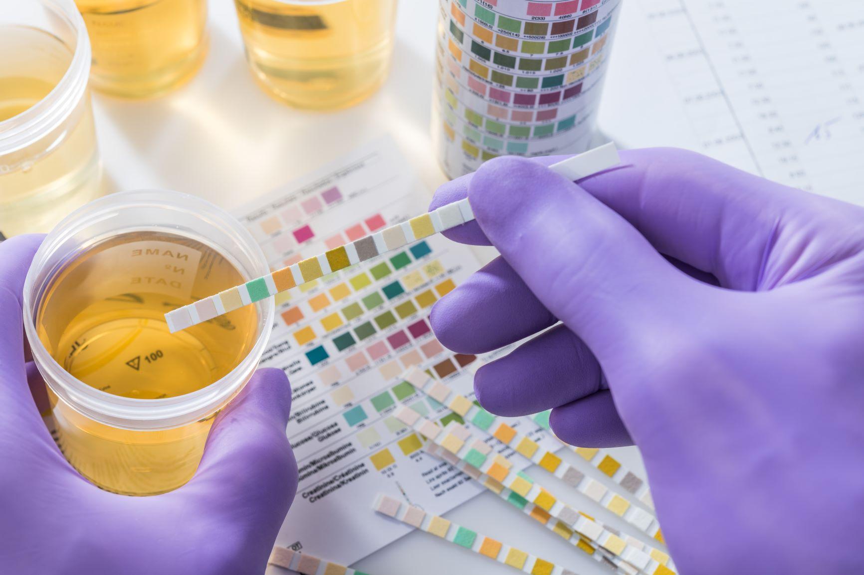 Discolored urine causes