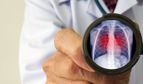 Respiratory syncytial virus, RSV